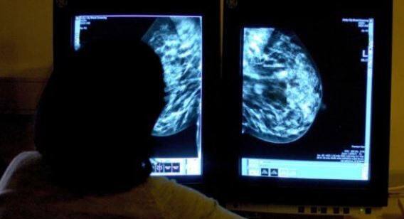 Artificial intelligence could speed up breast screening in north-east