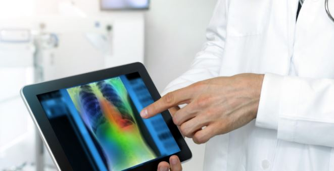 Explorathon'20 Tues 24 Nov 12pm: iCAIRD Talks Artificial Intelligence in Breast Cancer Screening
