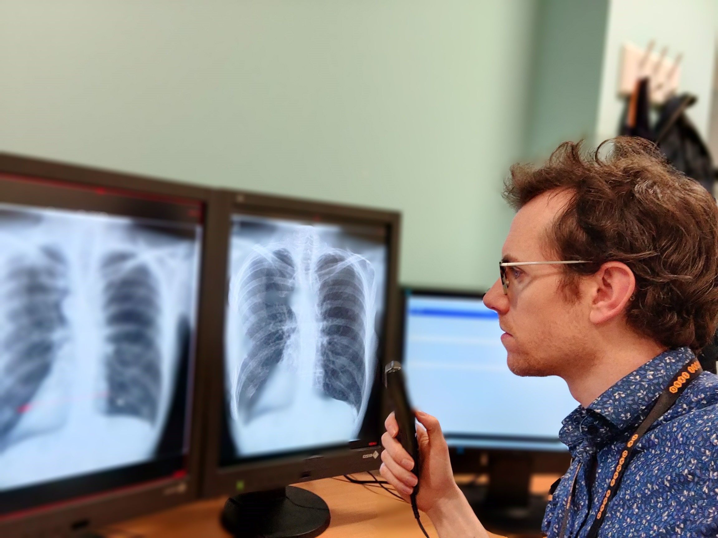 AI could speed up COVID-19 diagnosis in Emergency Departments